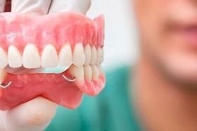 Ортопедическая стоматология в «ЭстедентПлюс»