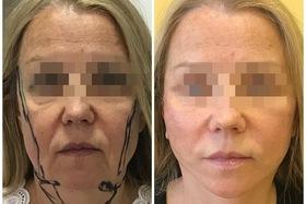 Круговая подтяжка лица (ритидопластика)