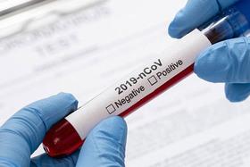 Платная услуга «Определение антител к SARS-CoV-2»
