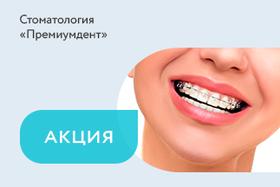 Акция «Бесплатная консультация ортодонта»