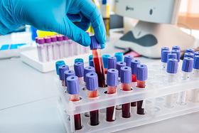 Анализы крови на дому