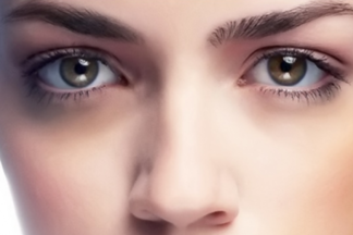ТОП-5 подручных способов, которые помогут избавиться от темных кругов под глазами