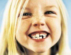 Когда придет Зубная фея?