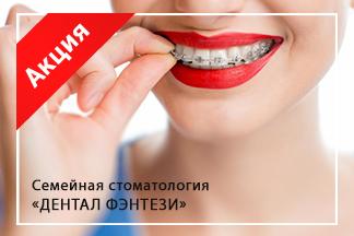 Ортодонтическое лечение в рассрочку