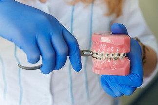 Стоматолог-ортодонт о  брекетах, трендах и  «блендерном» поколении