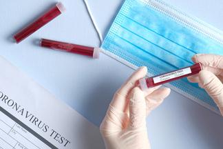 Создан 10-секундный тест на коронавирус