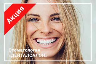 Акция «Комплексное отбеливание зубов — 450 руб.»