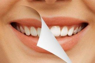 5 популярных причин, почему желтеет зубная эмаль