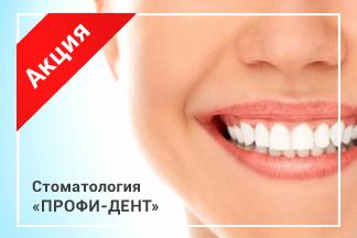 Скидка 25% на фотоотбеливание зубов