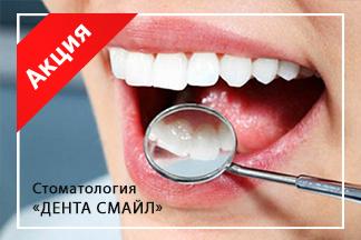 Специальная цена на профгигиену полости рта 49,50 бел. руб.
