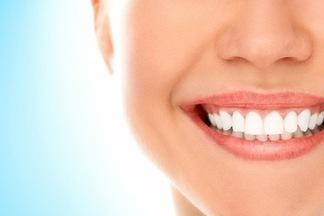Врач-стоматолог: «Не существует абсолютно безопасных методов отбеливания»