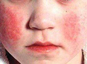 Краснуха у детей: фото, симптомы, лечение
