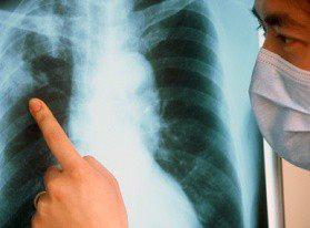 Мультирезистентный туберкулез в Беларуси