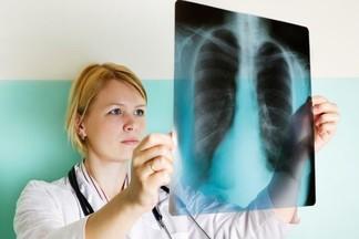 Городскую туберкулезную больницу планируют закрыть в 2020 году