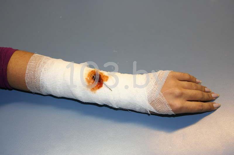 повязка вокруг инородных тел и открытых переломов1.JPG
